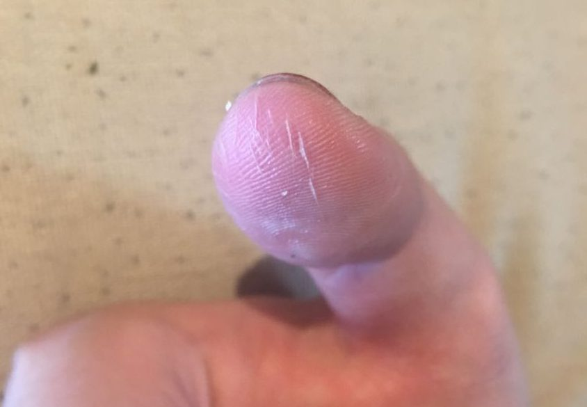 A badly torn up thumb from using a bolt snap incorrectly.